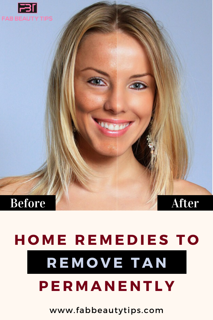 best remedy to remove tan, home remedies to remove tan, home remedies to remove tan from face, natural remedies for skin tan removal, natural remedies to remove sun tan, remedies for tan removal on face, sun tan removal home remedies, tan removal remedies