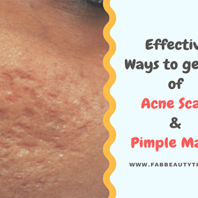Most Effective Ways to get rid of Acne Scars & Pimple Marks