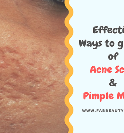 acne scar removal; acne scars; best thing to get rid of acne scars; get rid of acne scars; how to get rid of acne scars; how to remove acne scars; how to remove pimple marks; pimple marks