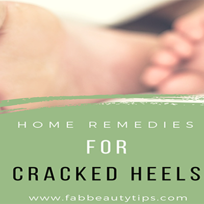20 Simple Home Remedies For Cracked Heels