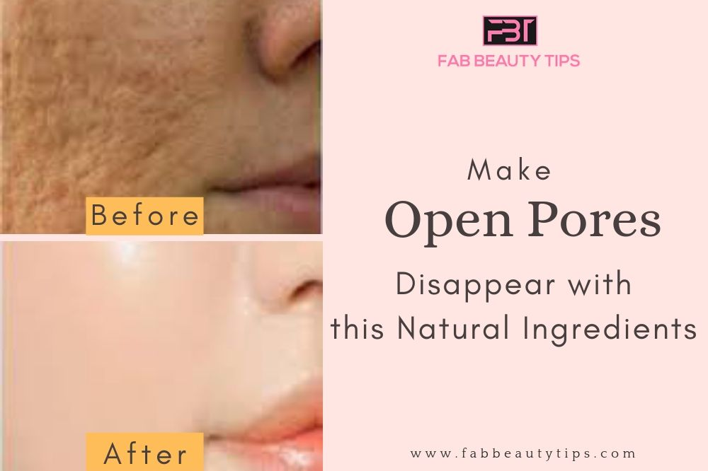 home remedies for large pores, home remedies for open pores, how to remove pores from face, How to remove open pores from face