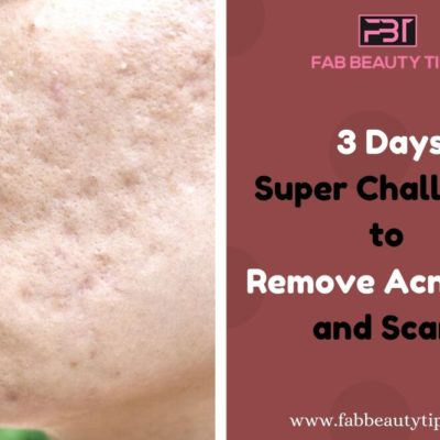 Remove Acne Scars in 3 Days with this Magical Home Remedy