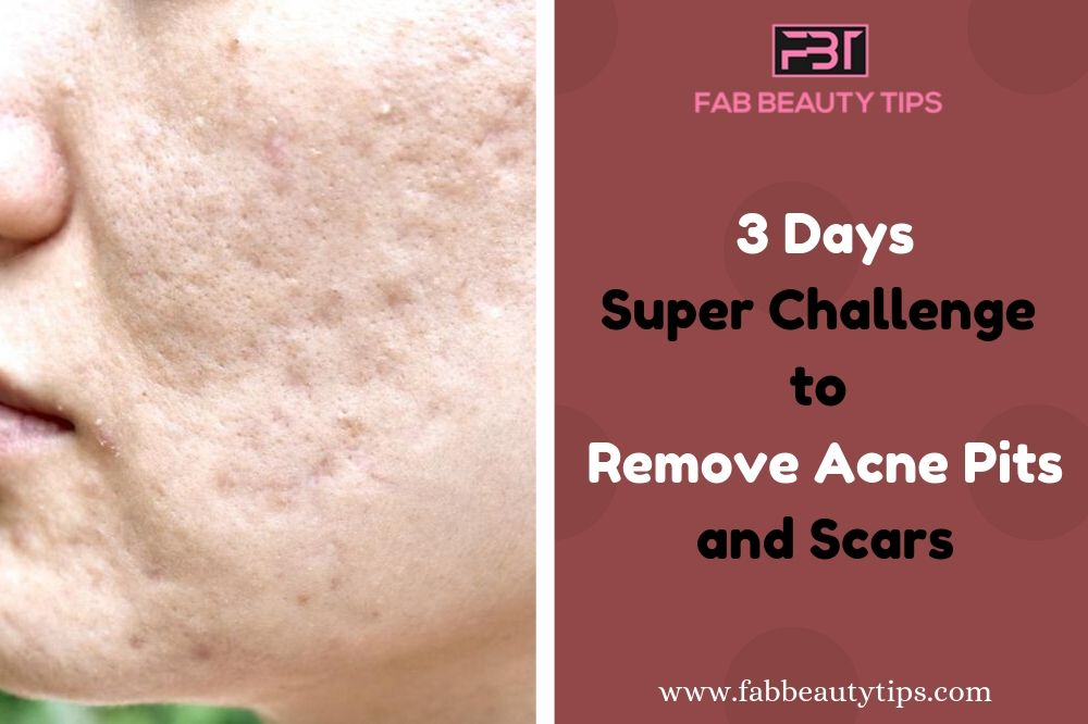 Remove Acne Scars In 3 Days With This Home Remedy Fab Beauty Tips