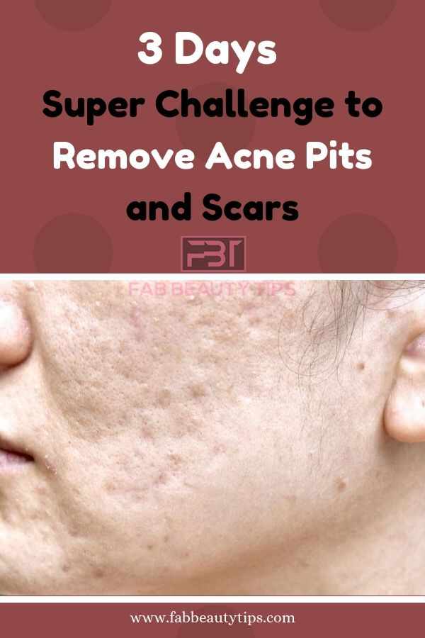 remove acne scars in 3 days, how to remove acne in 3 days, how to remove acne pits in 3 days, how to remove acne scars in 3 days, remove acne in 3 days