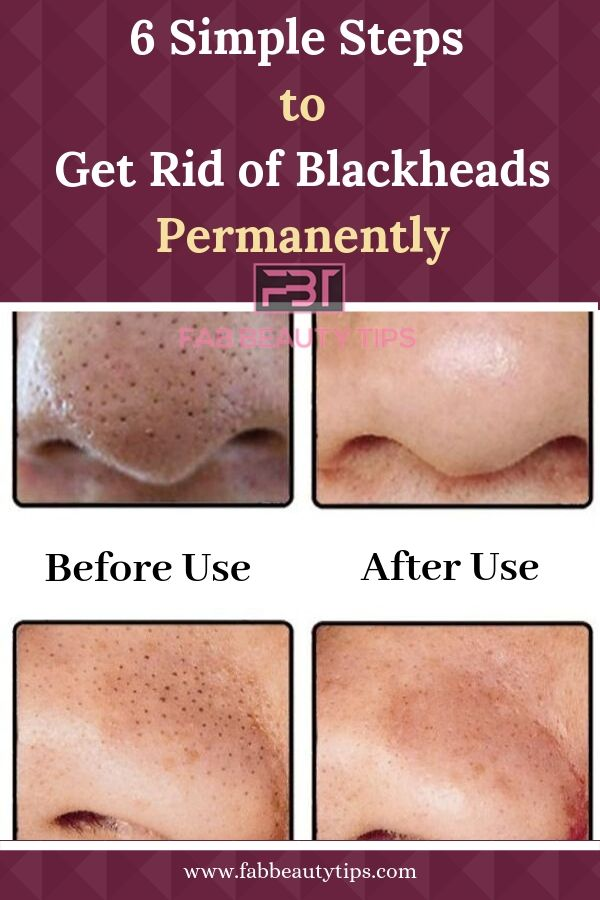 how to get rid of blackheads, get rid of blackheads on nose permanently, get rid of blackheads on nose with toothpaste, six steps to get rid of blackheads