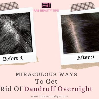 Miraculous Ways to Get Rid of Dandruff Overnight