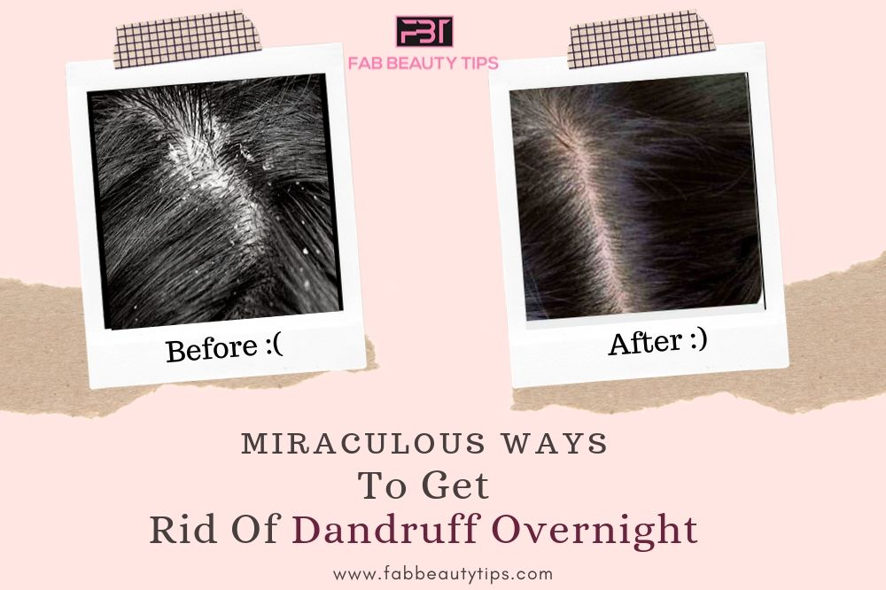 overnight remedy for dandruff, overnight home remedies for dandruff, rid of dandruff overnight, treat dandruff overnight, get rid of dandruff overnight