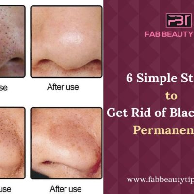 Try this Easy Six Steps to Get Rid of Blackheads