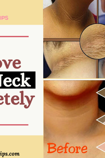 home remedies for black neck, home remedies for dark neck, how to get rid of dark neck fast, how to get rid of dark neck in 20 minutes, get rid of dark neck