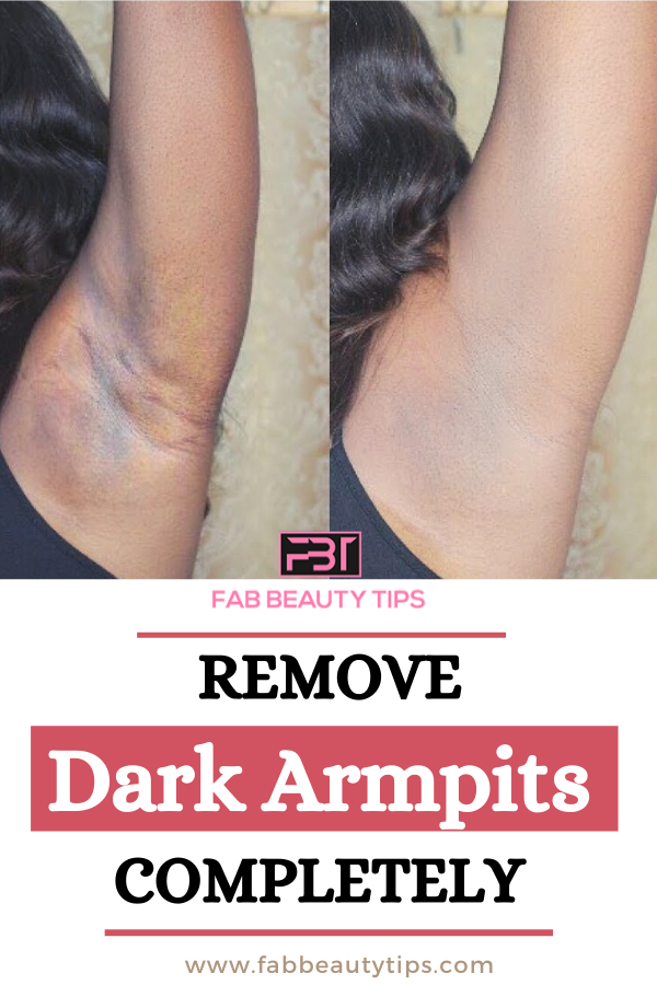 Get rid of dark armpits in a week,Home Remedies for Dark Armpits, Dark Armpits home remedies, get rid of dark armpits