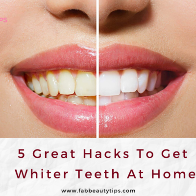 5 Great Hacks to get whiter teeth at home