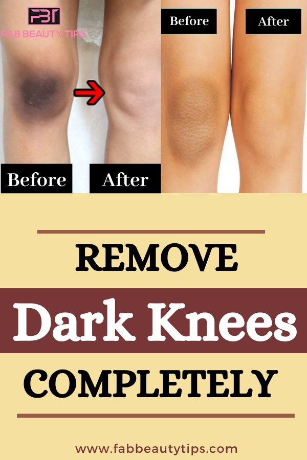 Home Remedies for Dark Knees, Remedies for Dark Knees, get rid of dark knee, dark knee homeremedies, Get Rid of Dark knees in a week