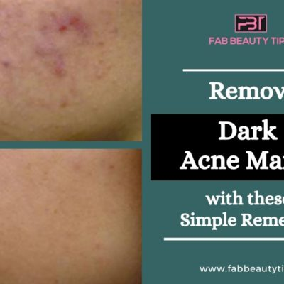 Completely Remove Dark Acne Marks with these Simple Remedies