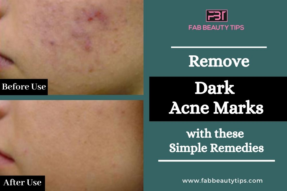 Completely Remove Dark Acne Marks, Remove Dark Acne Marks